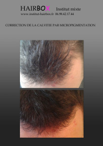 correction calvitie micro pigmentation tatouage